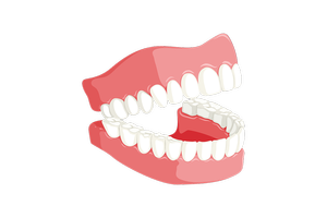 Изберете Dental Implants 3